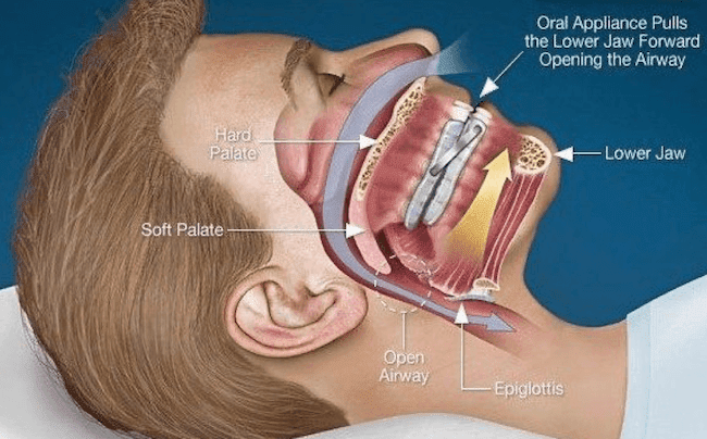 sleep apnea dental appliances | sleep apnea treatments Drexel Hill | sleep apnea dental device