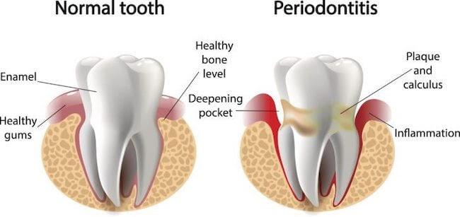 periodontitis | good oral hygiene | oral hygiene routine