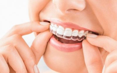 So, What Is ClearCorrect Exactly? This Orthodontic Treatment System Broken Down
