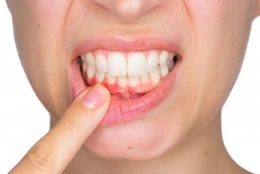 how to improve gum health | gum health tips | improve health of gums