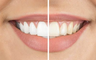 The Top Frequently Asked Questions About Professional Teeth Whitening